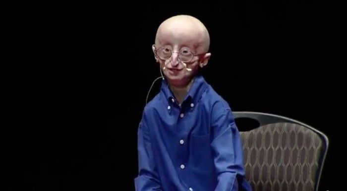 Video: Sam Berns – My Philosophy for a happy life